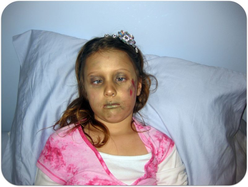 Injured girl with crossed eyes