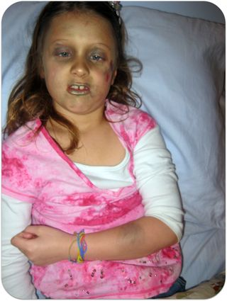 Injured daughter with bruised arm