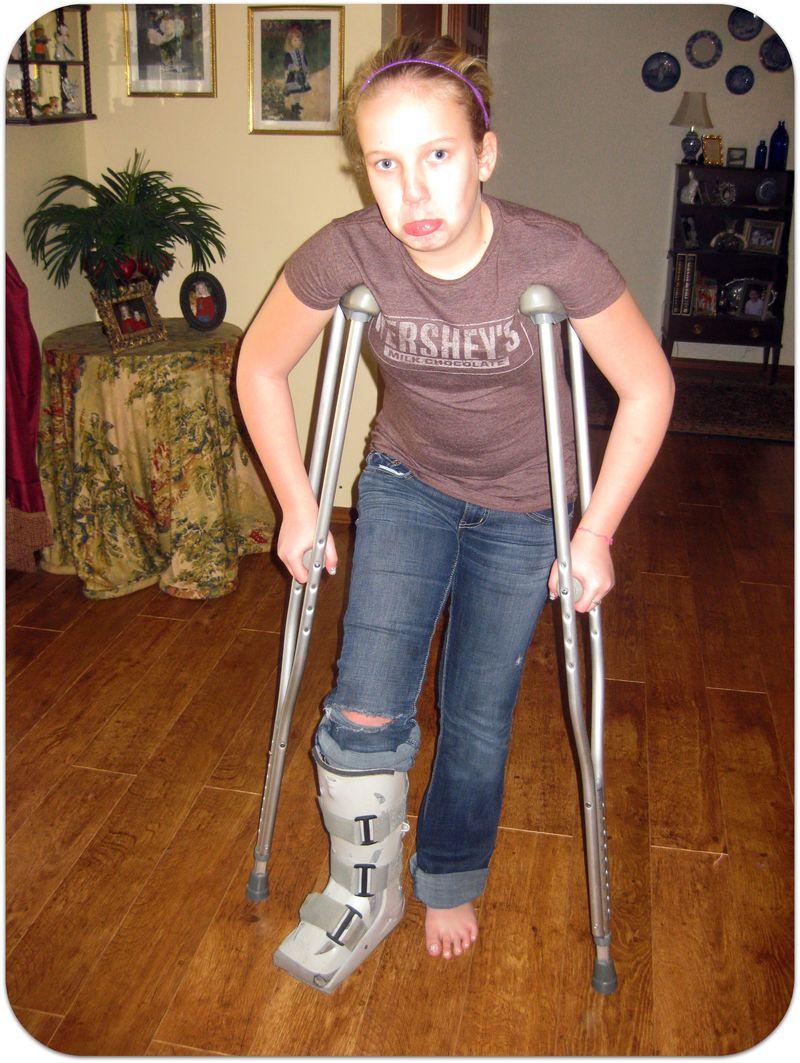 Becca broken foot 2012 again